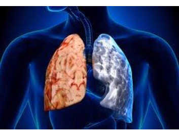 Chronic Obstructive Pulmonary Disease (COPD) Awareness