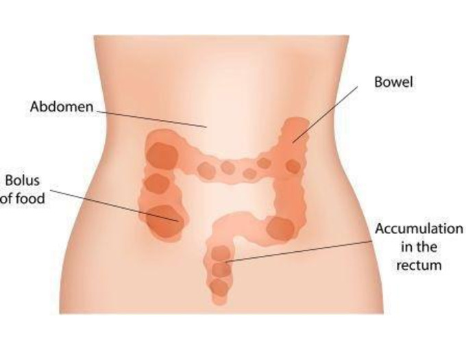 Bowel Care and Management